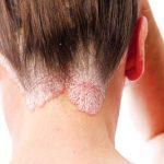 Những điều cần biết về bệnh vẩy nến da đầu