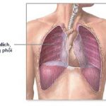 Bệnh tràn dịch màng phổi có lây không?