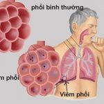 Viêm phổi cấp ở người lớn