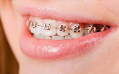 Niềng răng phải kiêng những gì?