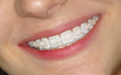 Niềng răng người lớn