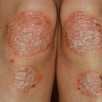 Bệnh vẩy nến có chữa khỏi được không?