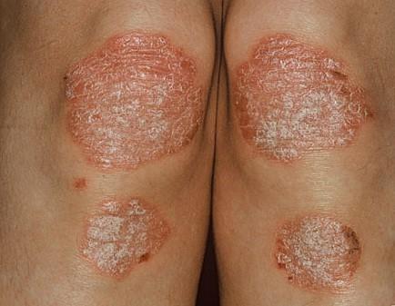 Bệnh vẩy nến kiêng gì?
