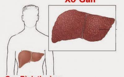 Xơ gan và cách điều trị