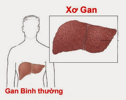 benh-xo-gan-co-chua-duoc-khong