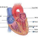 Bệnh cơ tim phì đại tắc nghẽn