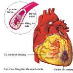 Bệnh động mạch vành là gì?