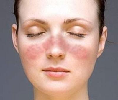 Bệnh lupus ban đỏ gây tổn thương nhiều nội tạng nhất, bất thường về miễn dịch phong phú nhất.