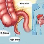 Đau bụng ruột thừa bên nào?