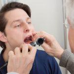 Đau rát cổ họng khi nuốt là bệnh gì?