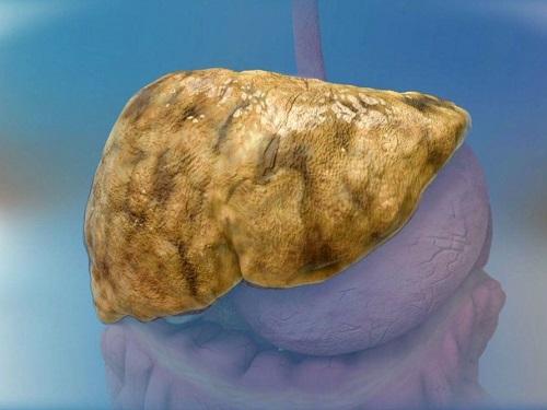 bệnh gan miễm mỡ