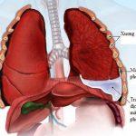Chữa tràn dịch màng phổi