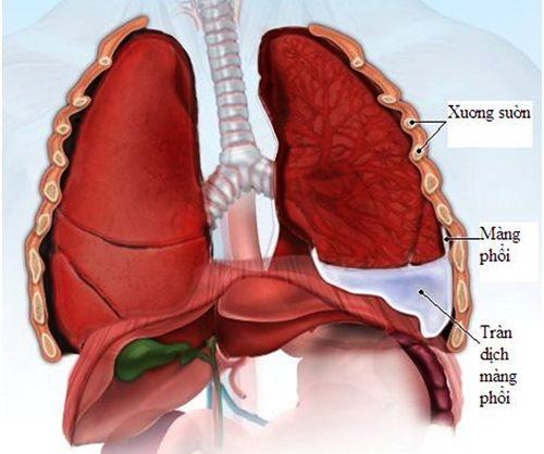 Tràn dịch màng phổi là hội chứng xảy ra đột ngột, gây nên cơn đau ngực dữ dội. Người bệnh có cảm giác đau như xé ngực.