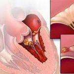 Bệnh viêm cơ tim là gì?