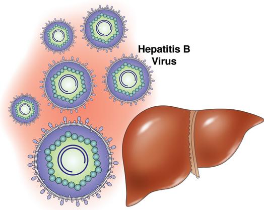 Hình ảnh virus HBV dưới kính hiển vi. Cần tìm ra giải pháp ngừa viêm gan do lây từ mẹ sang con