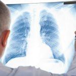 Bạn biết gì về tầm soát ung thư phổi