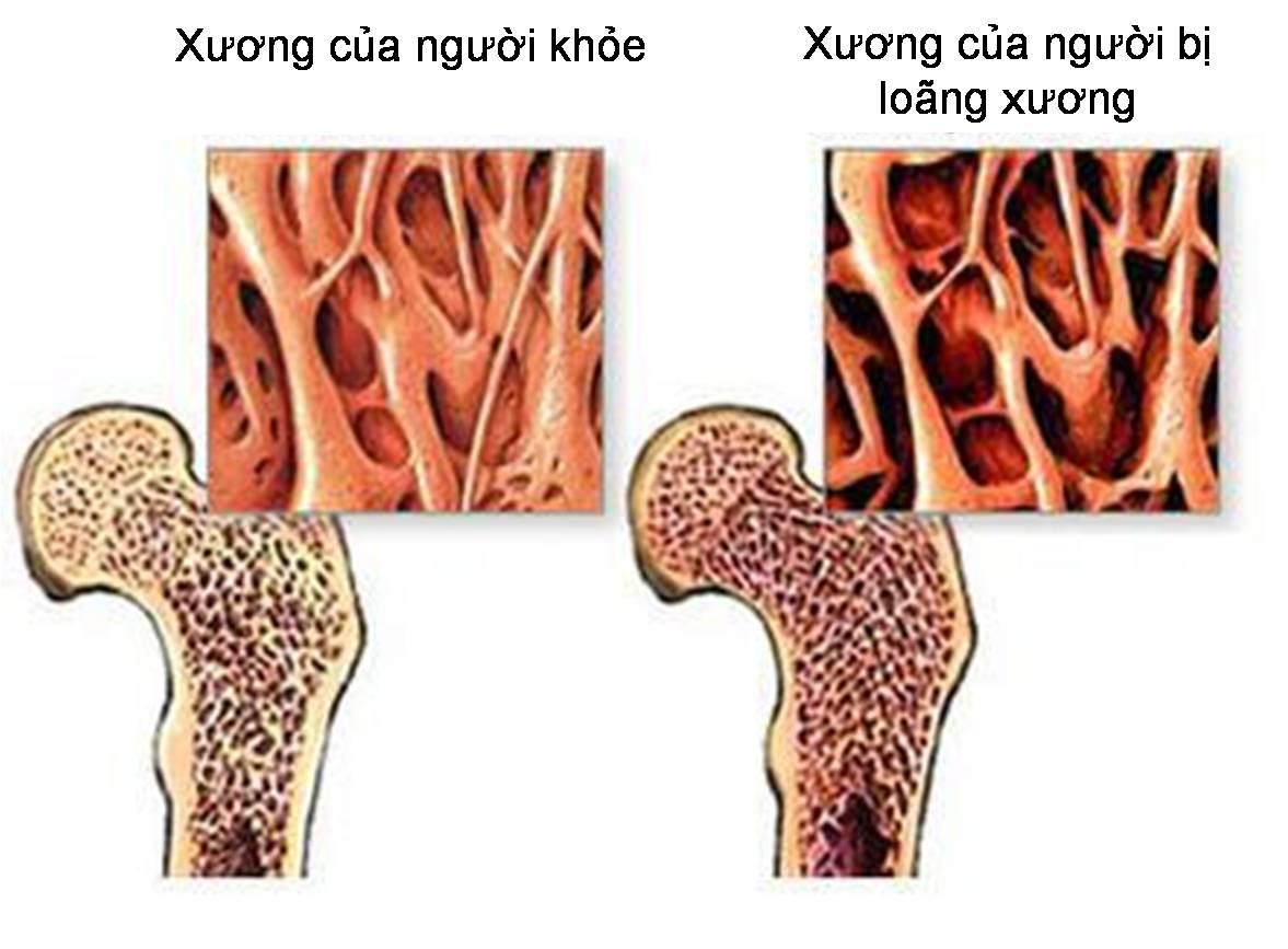 trieu-chung-benh-loang-xuong.jpg2