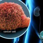 Tìm hiểu về ung thư bàng quang qua các hình ảnh