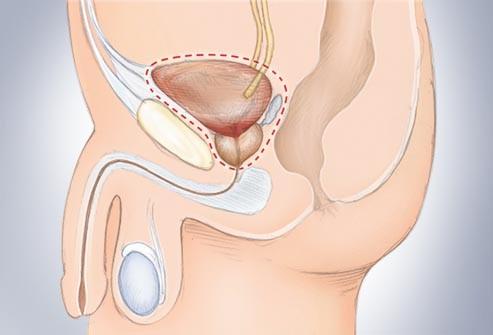 Phẫu thuật ung thư bàng quang