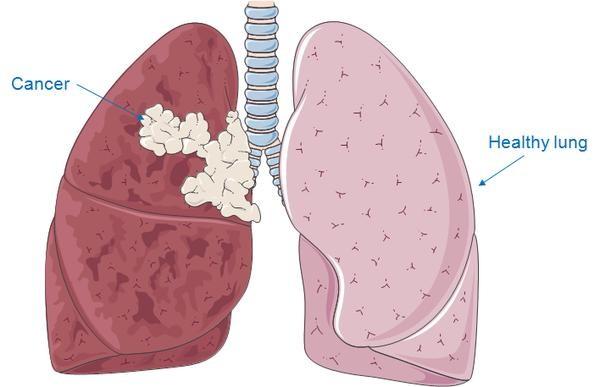 Ung thư phổi có di truyền không