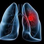 Ung thư phổi – bệnh ung thư nguy hiểm nhất thế giới