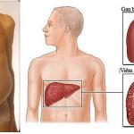 Viêm gan B mạn tính cần điều trị tích cực