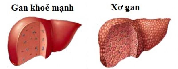 Những giai đoạn của bệnh xơ gan2