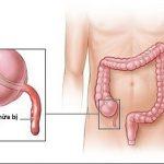 Viêm ruột thừa có nguy hiểm không?