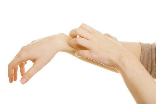 Bệnh nấm da chữa được không luôn là mối quan tâm hàng đầu của người mắc bệnh.