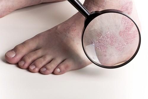 Bệnh vẩy nến ở trẻ em cũng là do di truyền và do vi khuẩn streptococcus và thường xảy ra sau nhiễm trùng cổ họng.