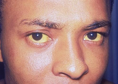 Vàng da và mắt có thể là triệu chứng của bệnh viêm gan C cấp tính.