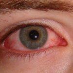 Biến chứng bệnh đau mắt đỏ