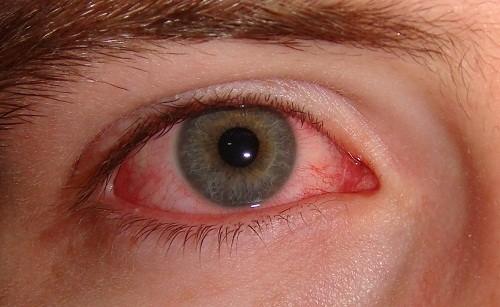 Biến chứng bệnh đau mắt đỏ (viêm kết mạc) phụ thuộc vào nguyên nhân gây bệnh.