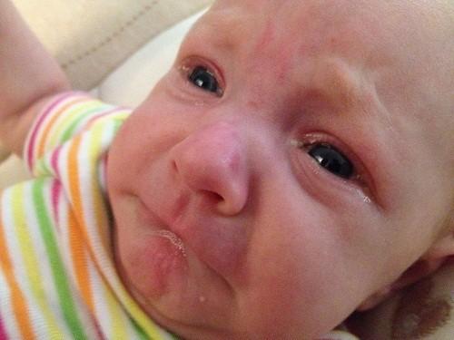 Các biến chứng bệnh đau mắt đỏ ở trẻ sơ sinh là rất hiếm gặp và trẻ có thể phục hồi hoàn toàn.