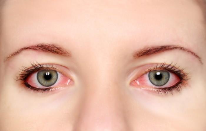Đau mắt đỏ là bệnh dễ lây lan và bùng phát thành dịch.