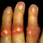 Chẩn đoán bệnh gout