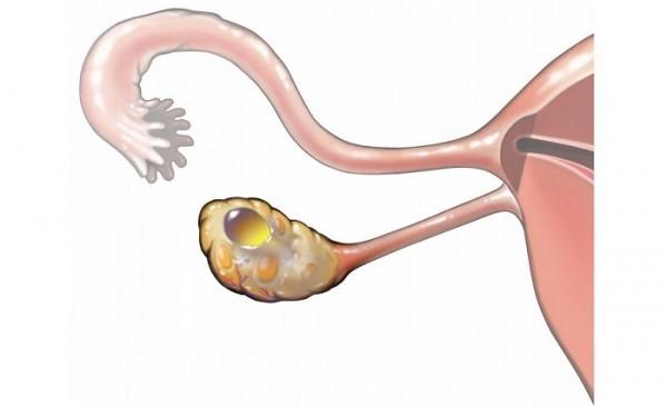 Dấu hiệu u nang buồng trứng
