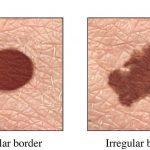 Các dấu hiệu ung thư da chúng ta cần đề phòng