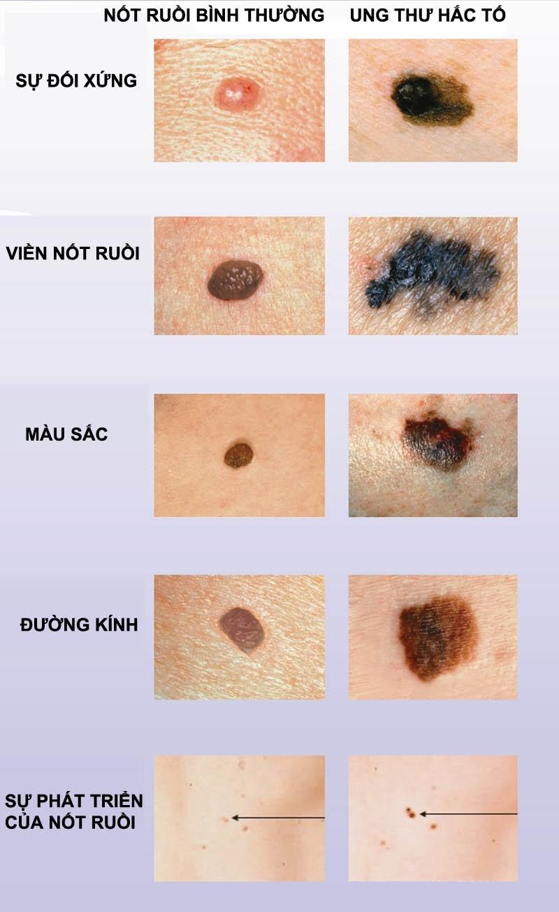 Các dấu hiệu ung thư hắc tố