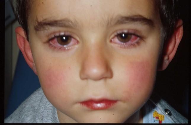 Đau mắt đỏ là bệnh thường gặp, dễ lây và bùng phát thành dịch.