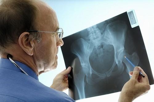 Khi bị đau xương cụt, tốt nhất người bệnh nên tới bệnh viện để được kiểm tra và tư vấn điều trị.