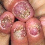Tìm hiểu về bệnh nấm móng tay