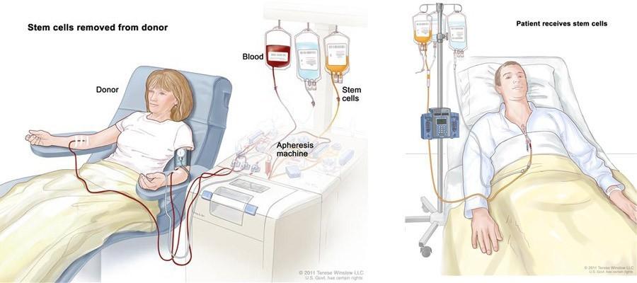 Phương pháp cấy ghép tế bào gốc đồng loại trong điều trị ung thư máu.