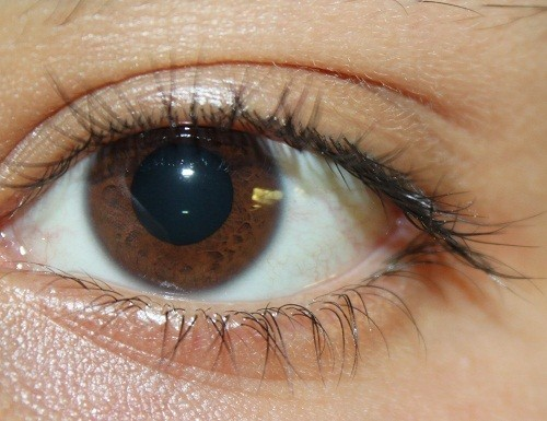 Ngoài việc chẩn đoán bệnh về mắt, các bác sĩ có thể nhìn thấy dấu hiệu của cholesterol cao, huyết áp cao, tiểu đường và các bệnh khác bằng cách kiểm tra mắt.