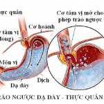 Nguyên nhân gây trào ngược dạ dày – thực quản