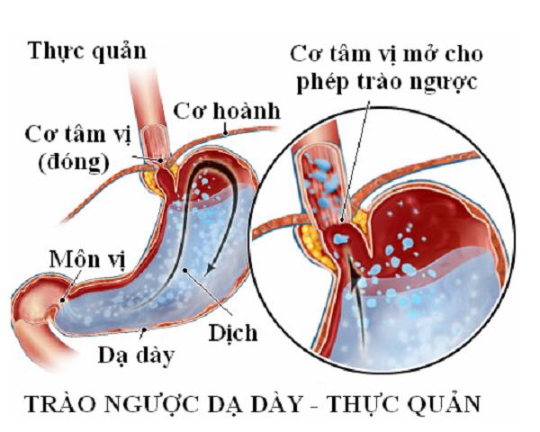 nguyen-nhan-gay-trao-nguoc-da-day-thuc-quan