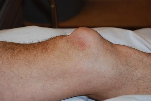 Vùng da quanh gối bị sưng lên đáng kể là triệu chứng của tràn dịch khớp gối.