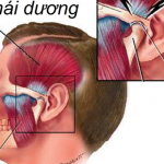 Phòng tránh rối loạn thái dương hàm