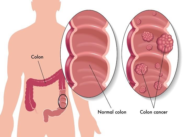 Ung thư đại trực tràng thường được phát hiện muộn và có tỷ lệ tử vong cao.