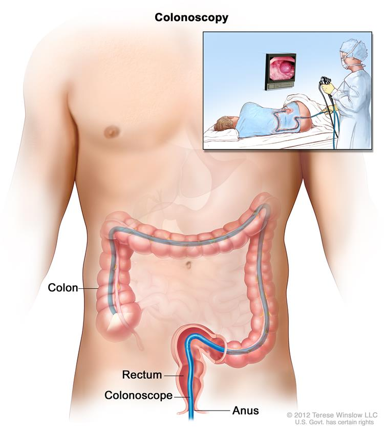 Nội soi đại tràng (quang học và nội soi đại tràng ảo) là những xét nghiệm thường dùng trong tầm soát ung thư đại trực tràng.